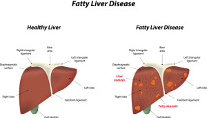 livclear very effective ayurvedic medicine for liver disorder
