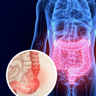 Irritable Bowel Syndrome Ayurvedic Treatment