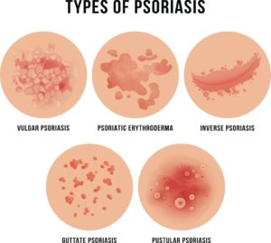 Psoriasis treatment in ayurved